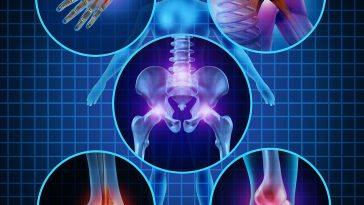arthritist