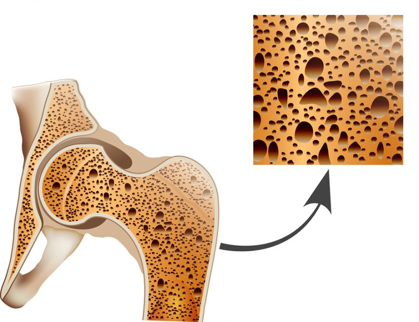 Osteoporosis In Femur Bone