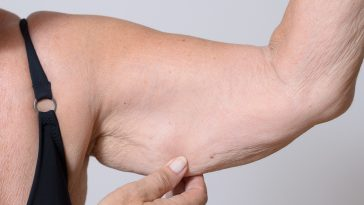 Elderly Lady Displaying The Loose Skin On Her Arm