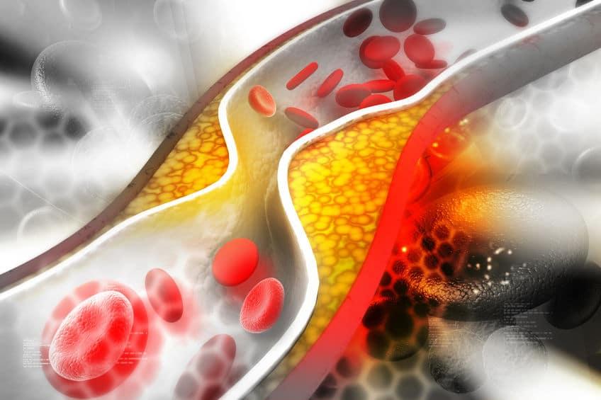 39043222 - cholesterol plaque in artery