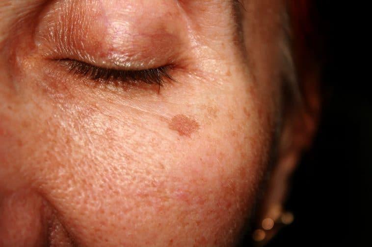 Las dela cara por como la edad producidas manchas quitar